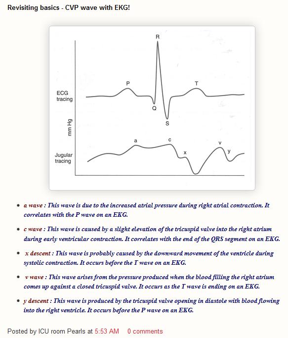 Hemodynamic Monitoring Crashing Patient