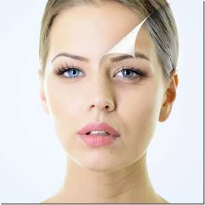 Dermal fillers injections