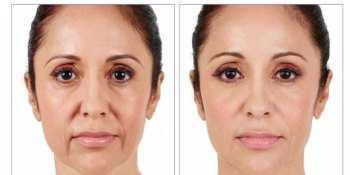 What is juvederm treatment?