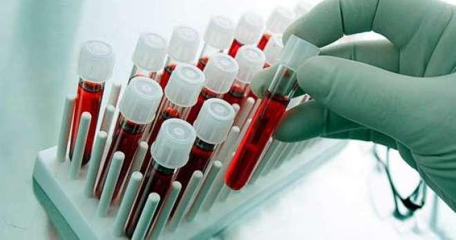 Sociedade Brasileira de Medicina de Família e Comunidade (SBMFC) orienta sobre a necessidade de exames apenas quando há sintomas a serem investigados.