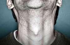 De forma geral, nódulos na tireoide são muito comuns e cerca de 90% deles são benignos.