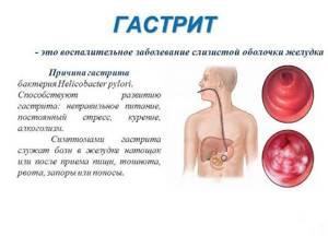 În stomac ca și cum ar fi: cauze, tratament, prevenire