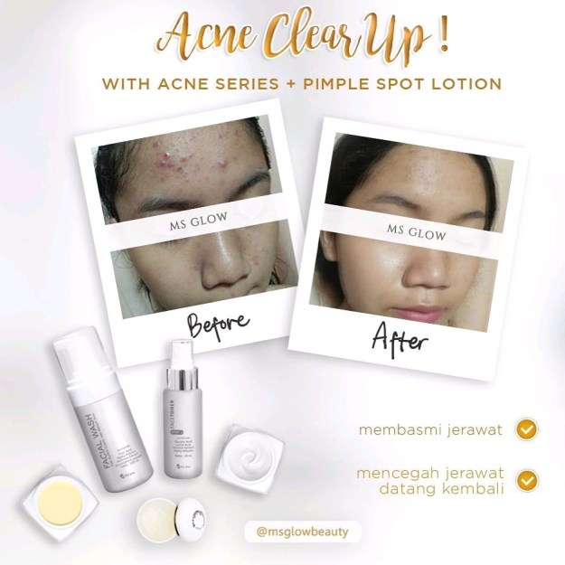 Testimoni pemakaian acne series ms glow