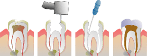 root-canals-tustin-ca