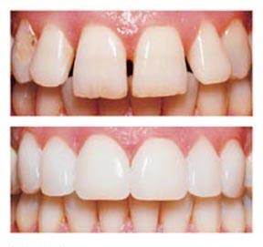 tustin-veneers-before-and-after