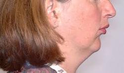 class-ii-occlusion-orthodontics-in-tustin-ca