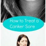 How to Treat a Canker Sore