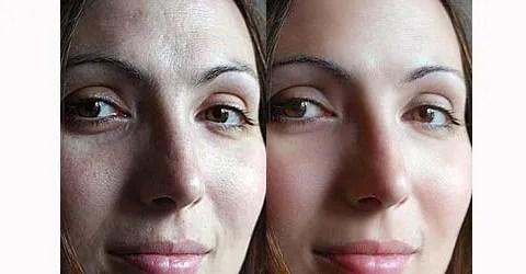 soften-skin