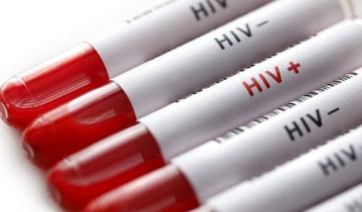 Researchers say they have discovered a HIV antibody that can suppress the virus for nearly six months without additional treatment. The new study involved about half of a group of monkeys, infused with a broadly neutralising antibody to HIV combined with an immune stimulatory compound.