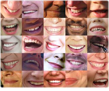 sorridere-bene