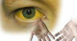 Вслед за корью с Украины на Крым «ползёт» гепатит А