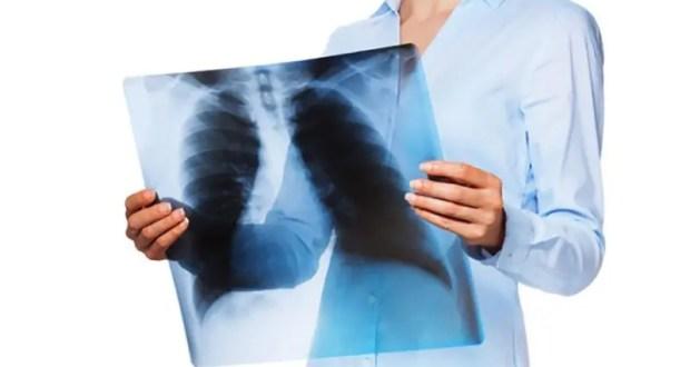 В Севастополе снизился уровень заболеваемости туберкулёзом