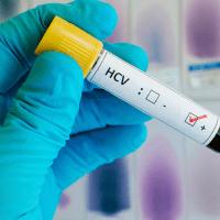 """Гепатит С: почему это заболевание именуют - """"ласковый убийца"""". Симптомы и лечение"""