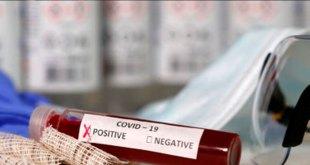 Van 500 mil pruebas para coronavirus Covid-19 para estados