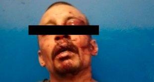 Vecinos de Tepeapulco retienen y golpean a un presunto ladrón