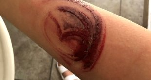 "Le queda ""tatuaje"" con logo de Mazda tras choque"