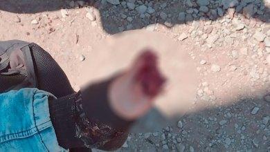 Sujeto destrozó dedos pie tren Apan