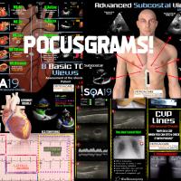 POCUS-grams