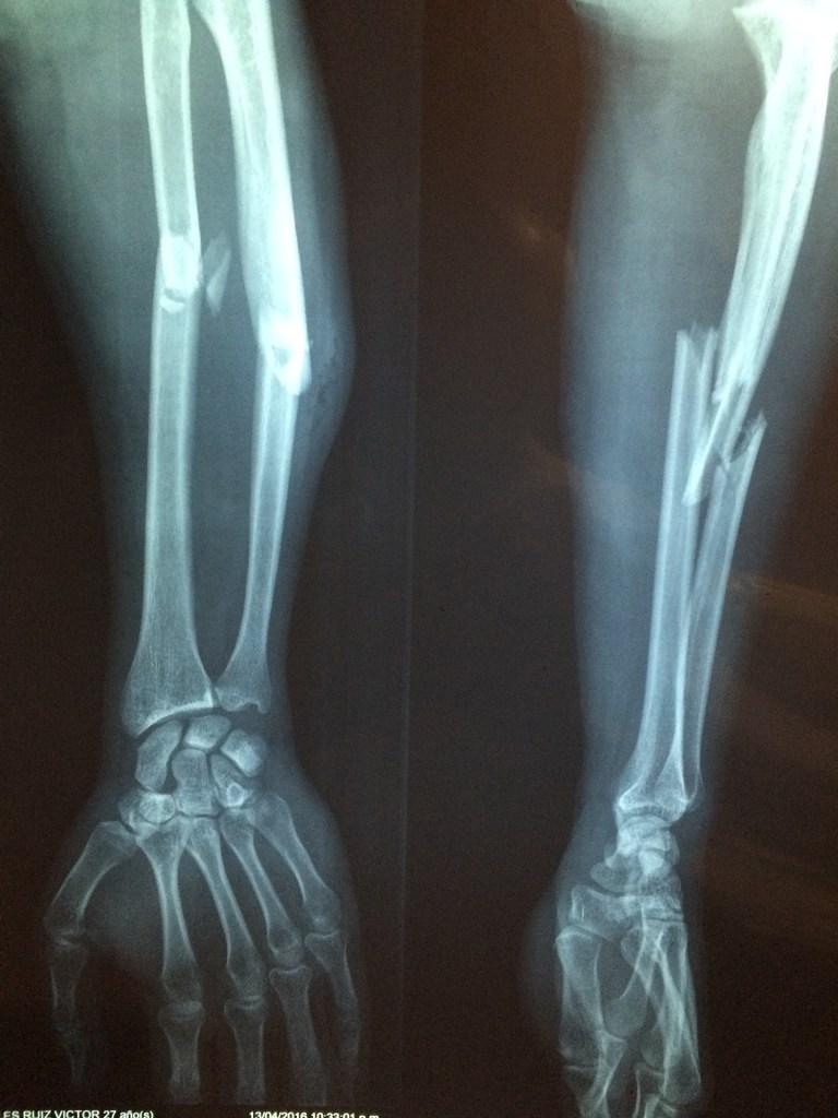 Safety Tips ATV broken bones