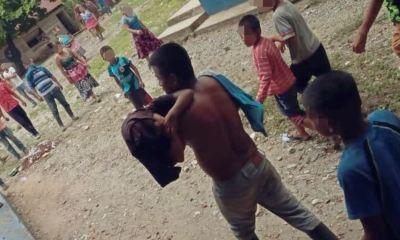 Niño herido en Izabal