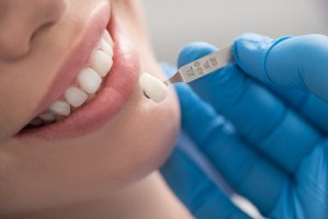 Crofton Dental Care - Dental Crowns