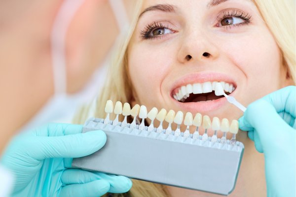 Teeth Veneers | Porcelain | Fareham | Crofton Dental Care