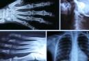 8 noiembrie: Ziua internaţională a radiologiei