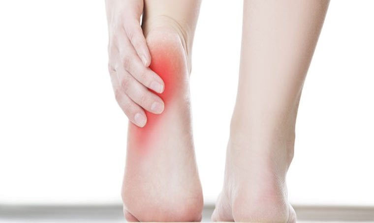 Reasons For Plantar Fasciitis Getting More Common
