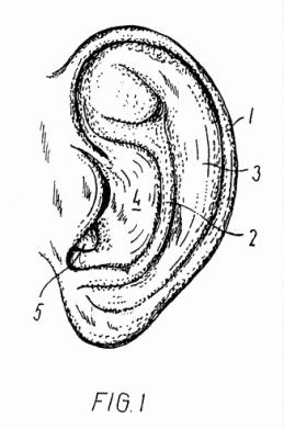 instrumento-para-corregir-la-forma-de-una-oreja-exterior