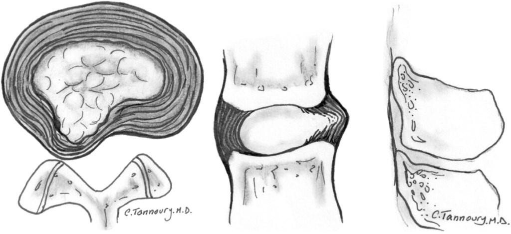 Tiempo de recuperación de la hernia discal