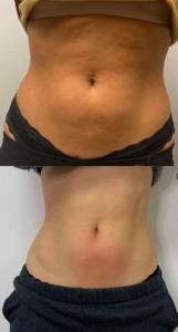 Slimming results