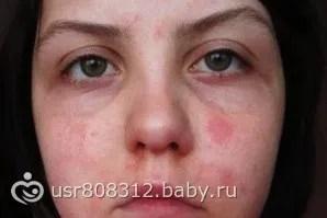 Красные пятна на лице.