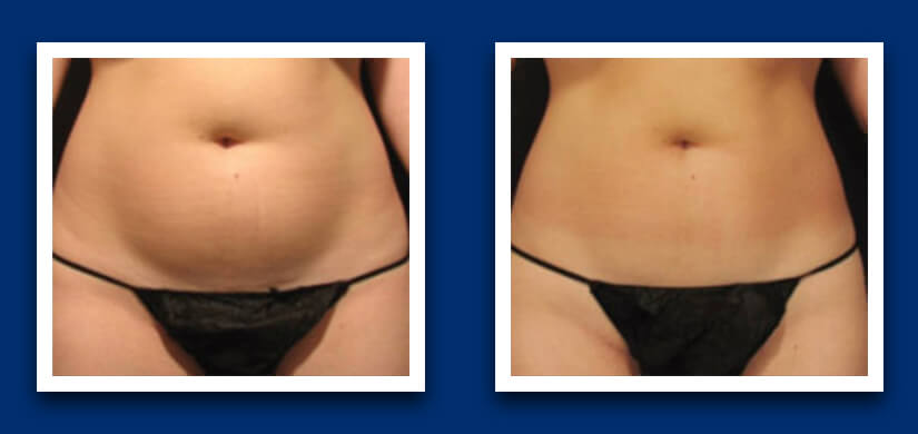 Fat freezing front before and after