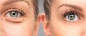 Eye bags around eyes treatment Exeter