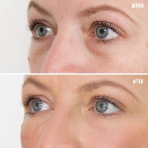 Dark circles around eyes treatment Exeter