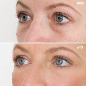 Dark circles around eyes treatment Exeter