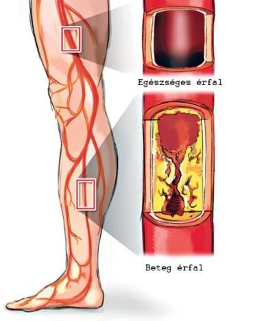 Csontritkulás, magas vérnyomás? Irány a mofetta, a több évszázados gyógymód!