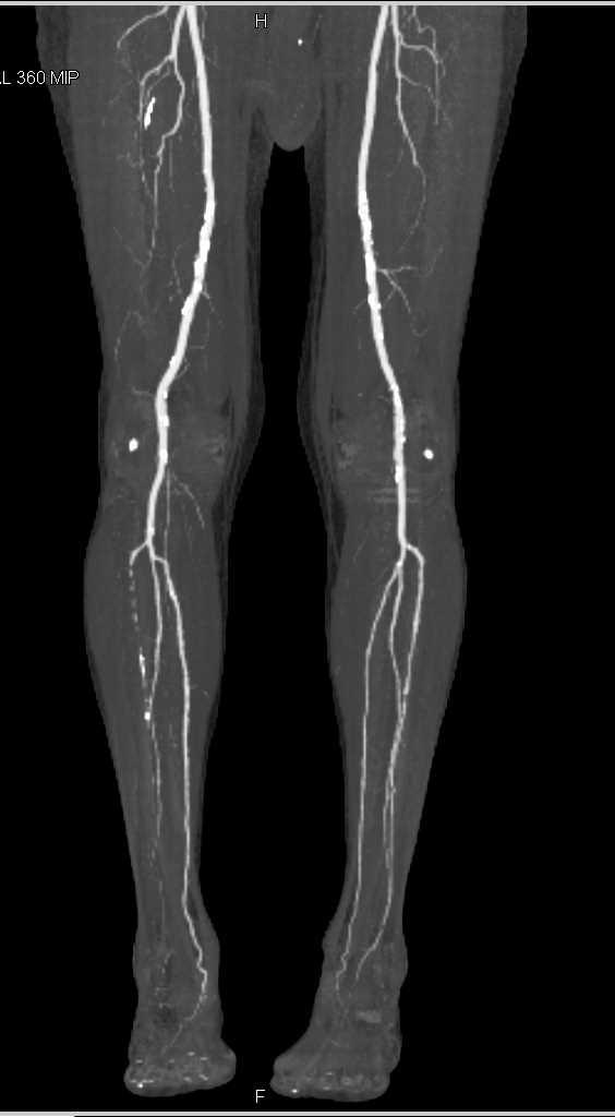 Peripheral Cta Aortogram Runoff