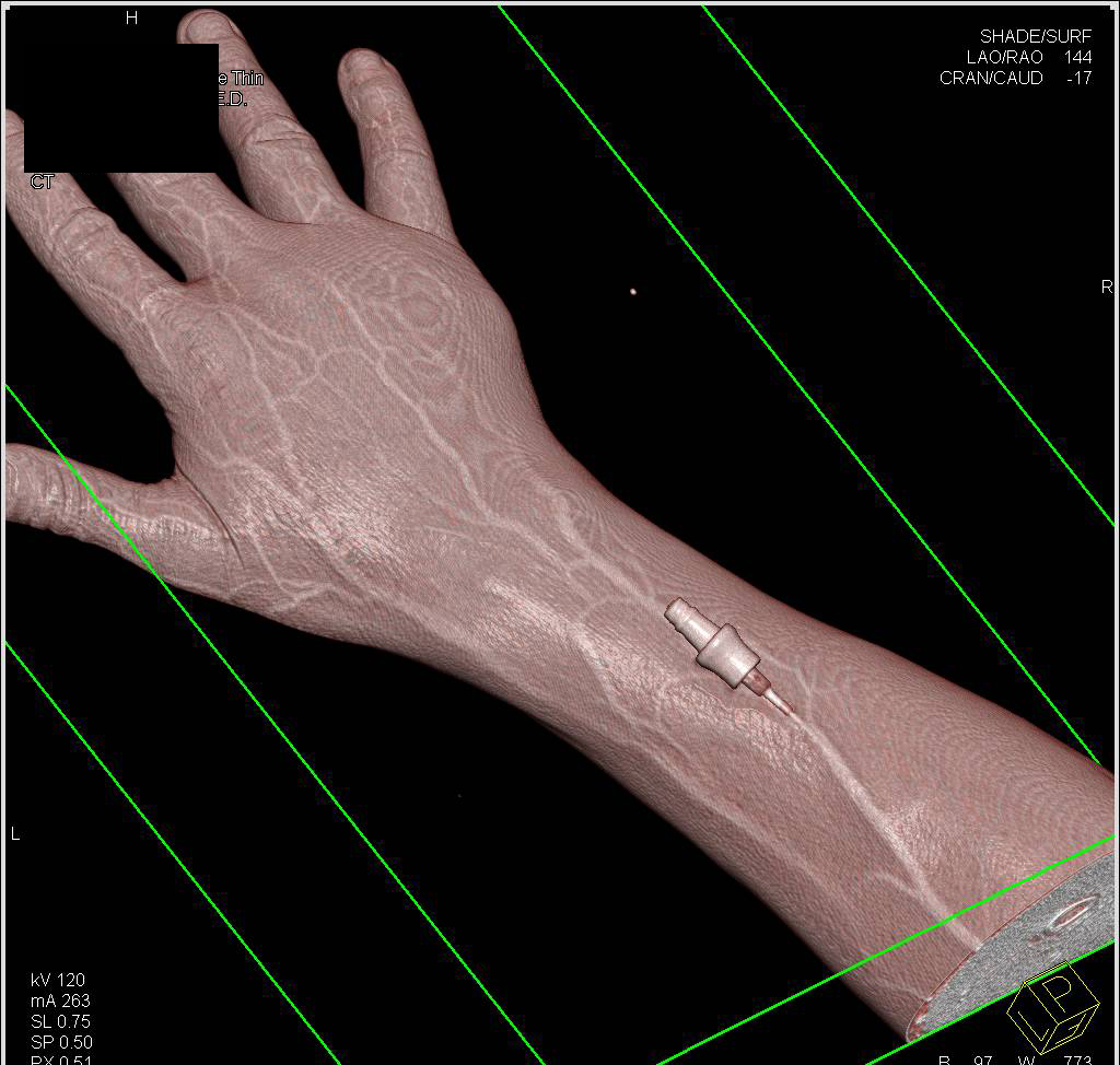 Cellulitis Without An Abscess And Nice 3d Of An Iv Line