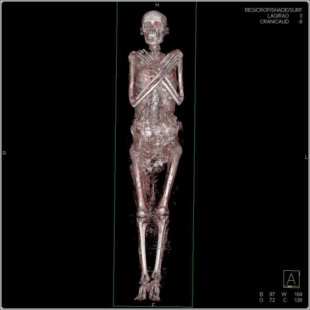 3d Of A Mummy