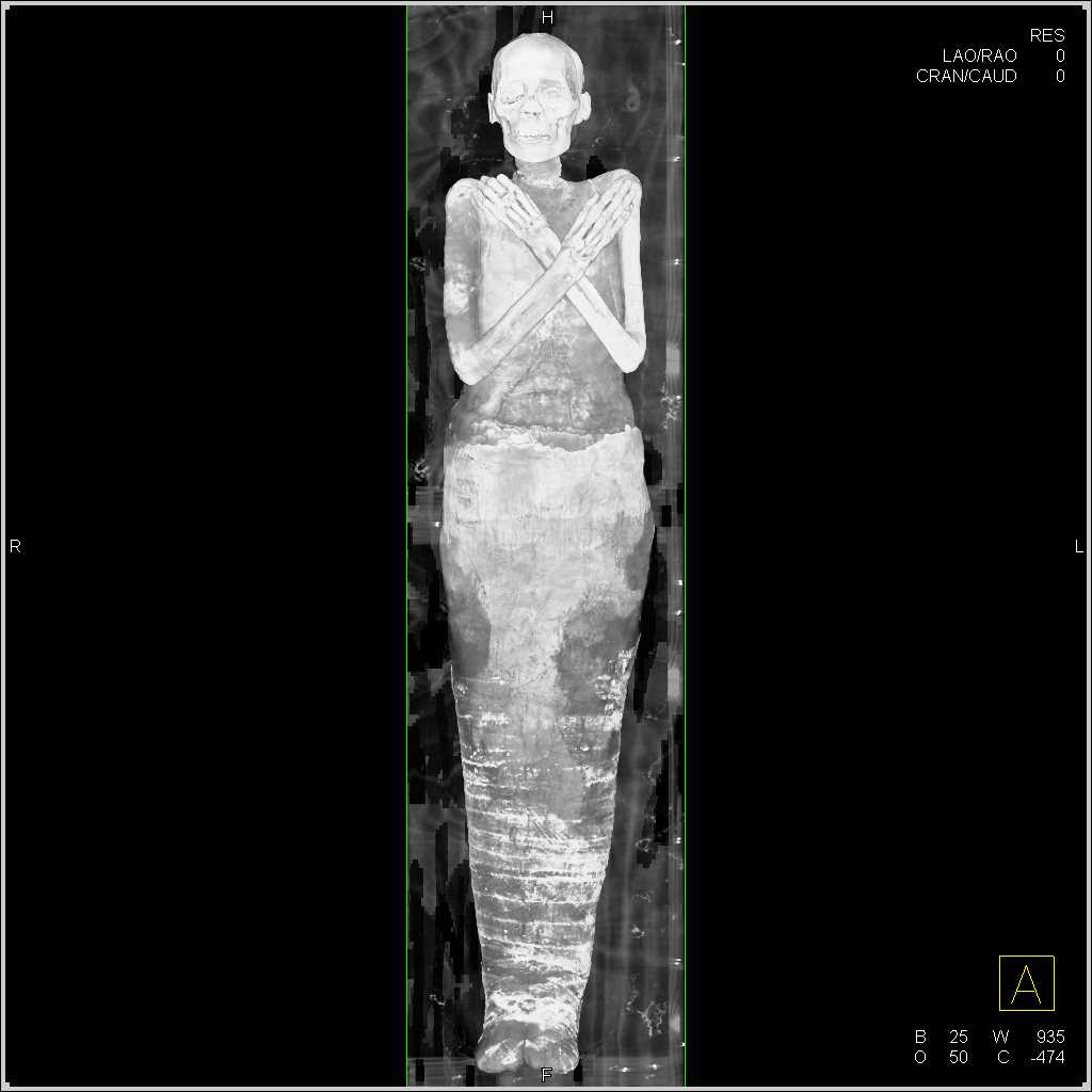 3d Of A Mummy
