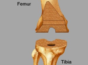 Total Knee Replacement - Knee Shaping