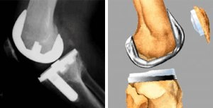 Completed Knee Replacement - X-Ray Side View