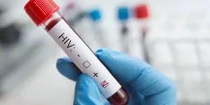 ¿Inoculación deliberada del VIH en Cuba?