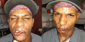 Maykel Osorbo se cose la boca ante hostigamiento del régimen