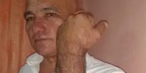 Ebert Hidalgo detenido y golpeado por agentes del régimen cubano