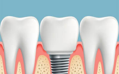 """All About """"All-On‐Four"""" Dental Implants: Learn about the Procedure, Recovery, Costs and Possible Complications"""