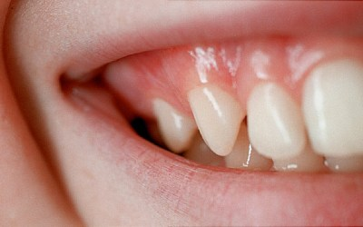How to Maintain Healthy Teeth and Gums