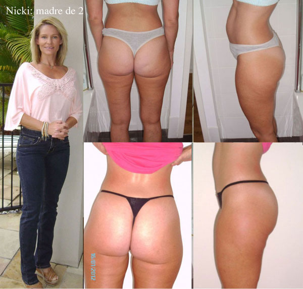 nickis-proof-of-cellulite-reduction-after-3_weeks