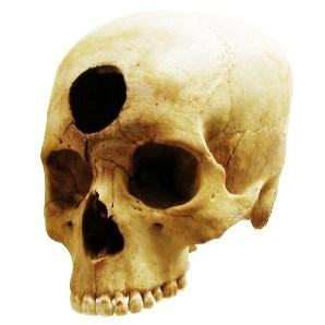 Un cráneo peruano con evidencias de trepanación de hace 2000 años. Fuente: tsaiproject.
